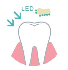 歯の説明②